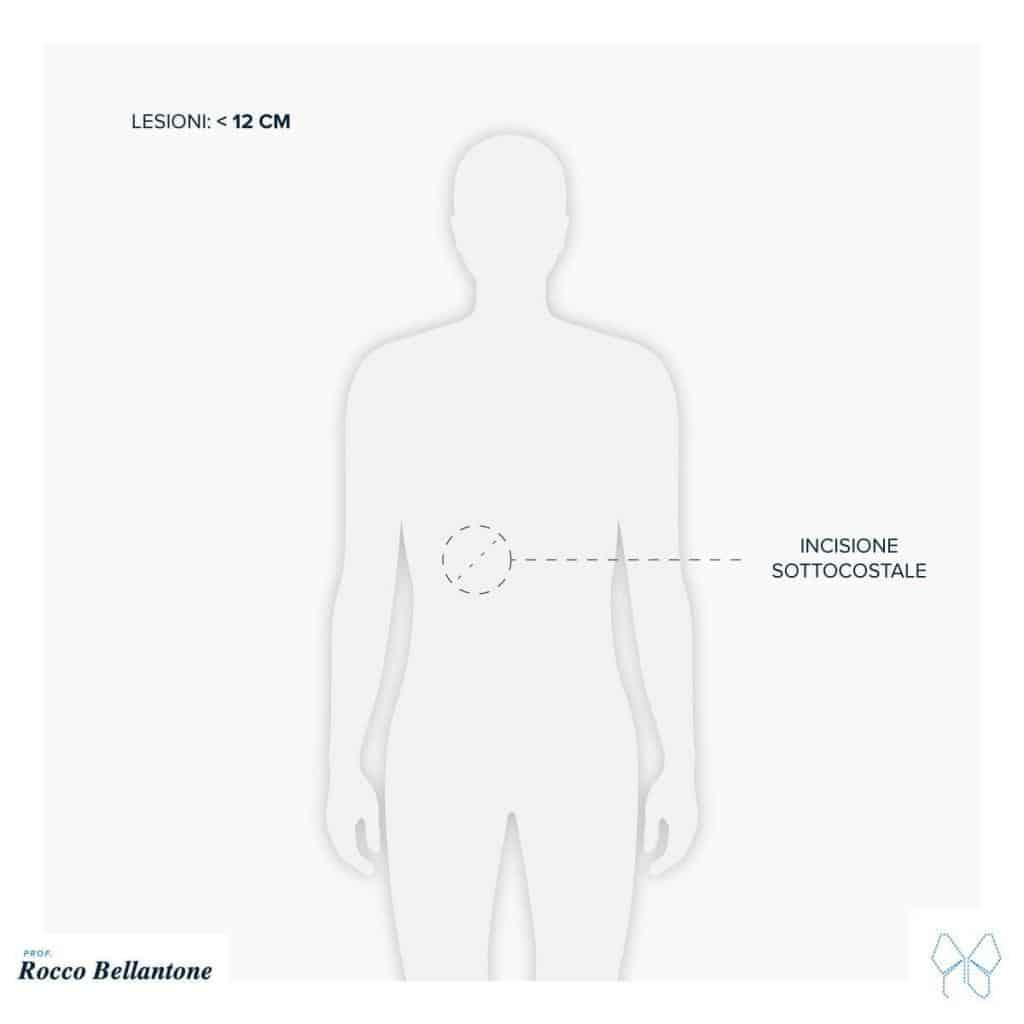 Surrenectomia laparotomica