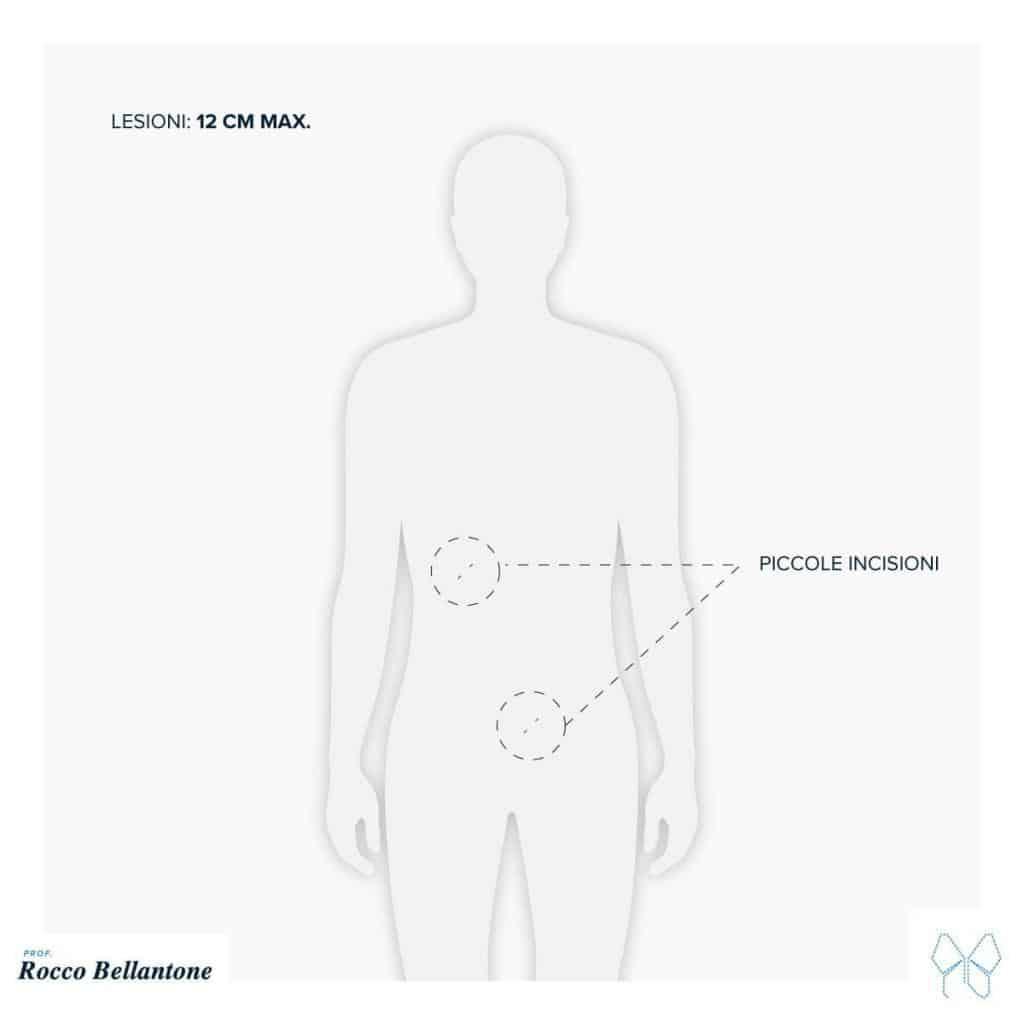Surrenectomia laparoscopica transperitoneale