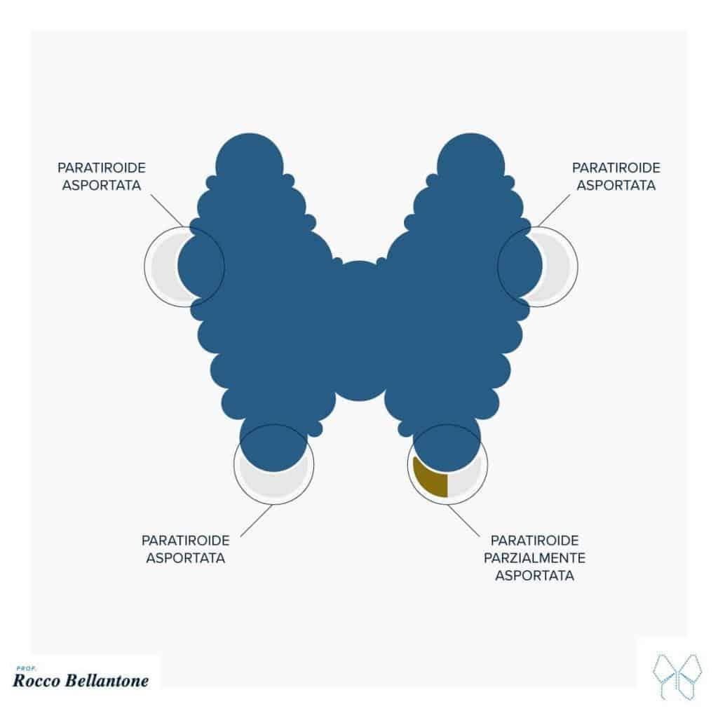 Paratiroidectomia subtotale
