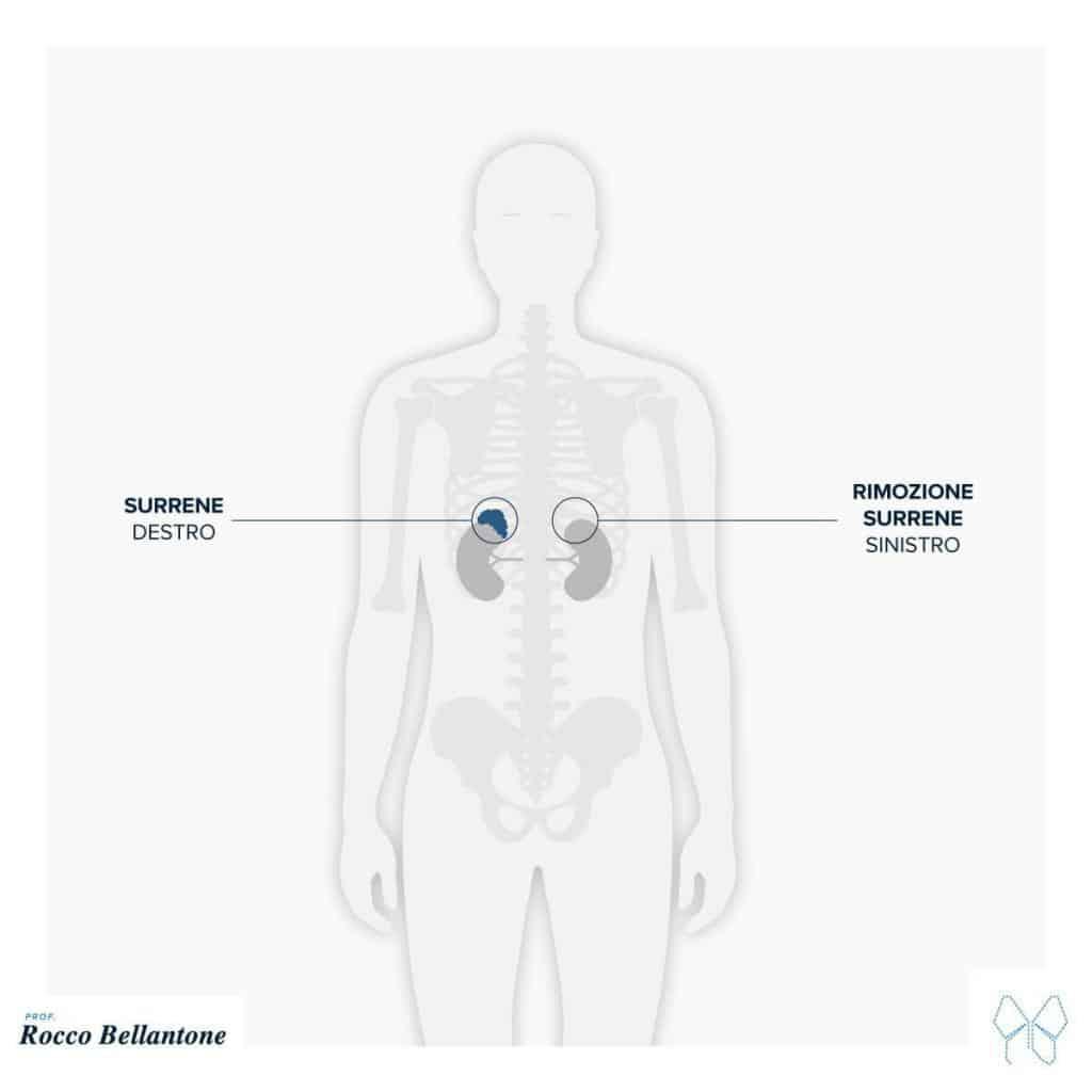 Feocromocitoma intervento chirurgico