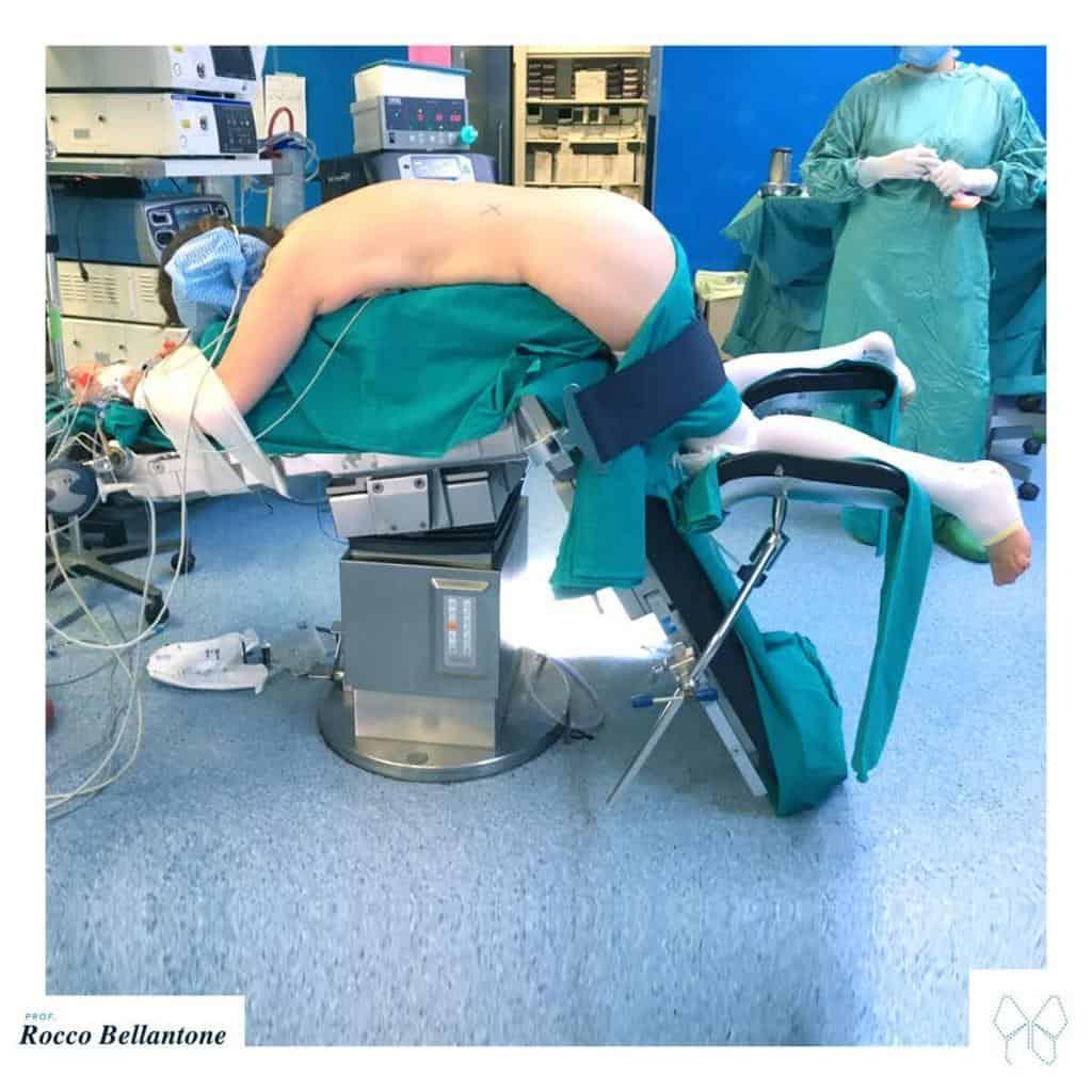 Surrenectomia retroperitoneoscopica