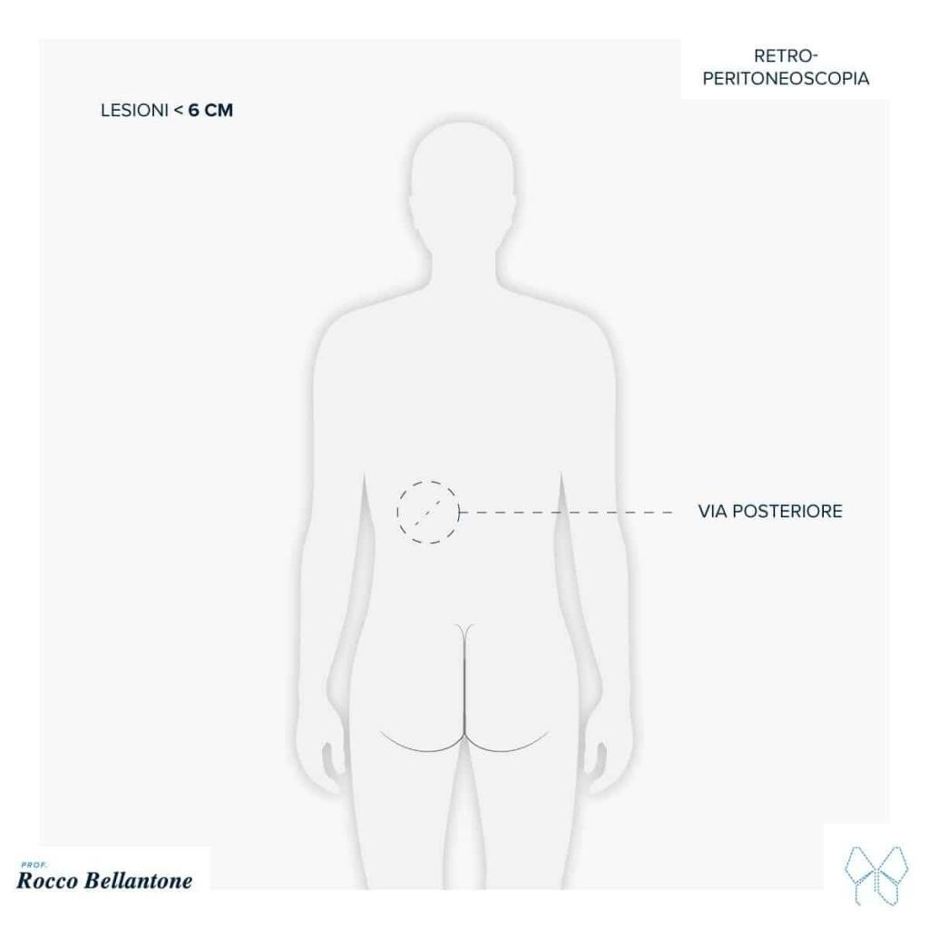 surrenectomia retroperitoneoscopia